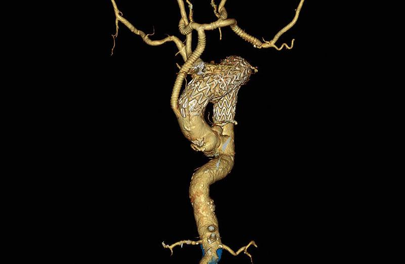 術後大動脈造影