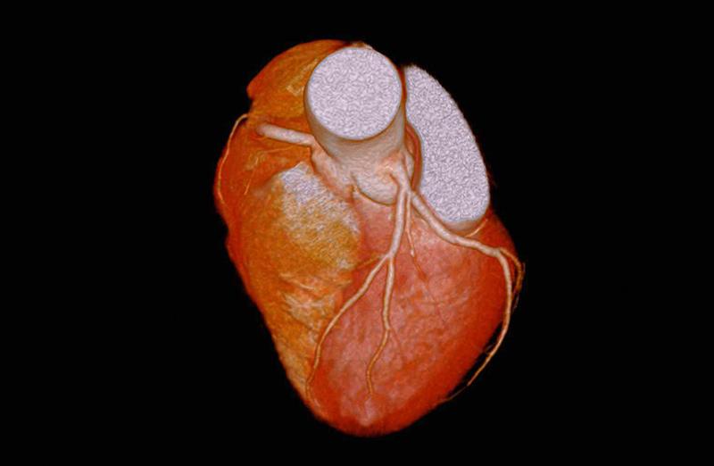 冠動脈CTA