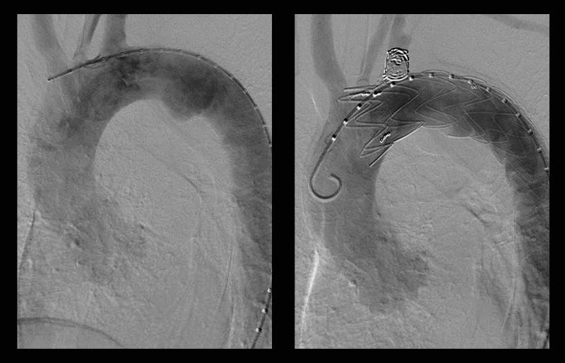 解離性大動脈瘤ステント術