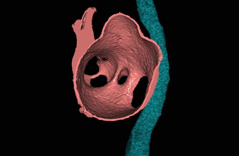 心臓手術支援画像